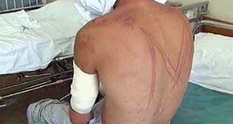 """Еден од малтретираните работници од """"Маврово"""""""